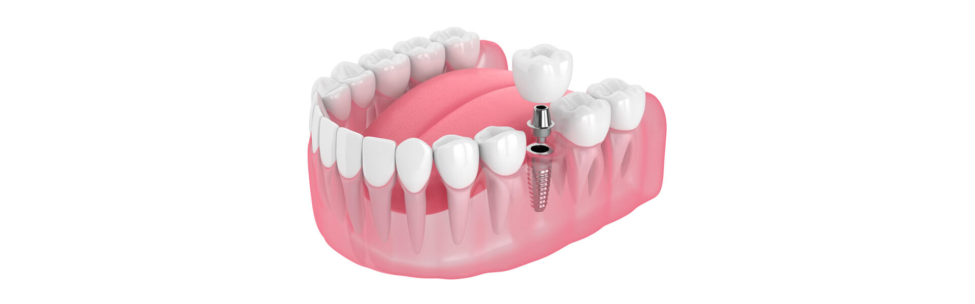 IMPLANTS — THE PERMANENT TOOTH REPLACEMENT SOLUTION