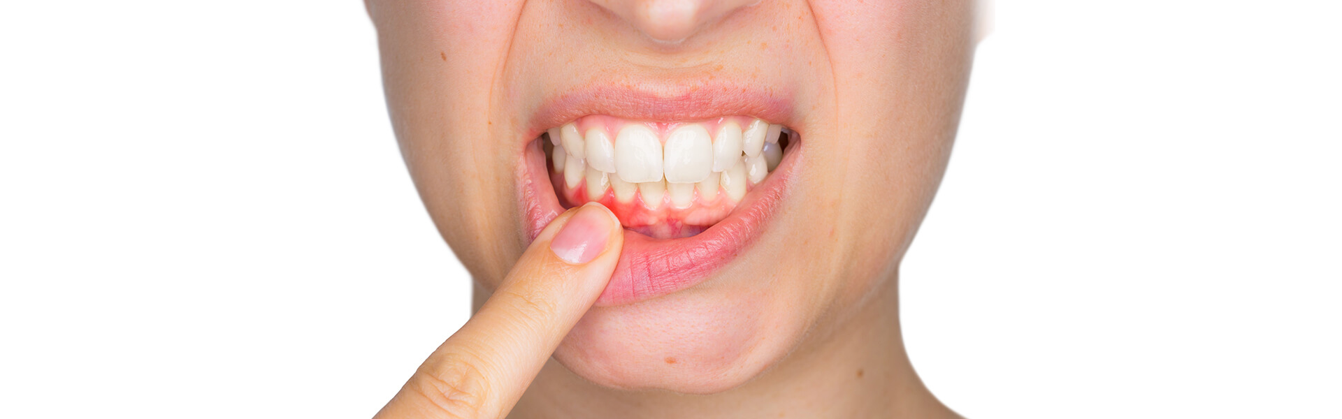 THERE IS A DISEASE ORIGINATING IN THE MOUTH THAT'S MORE COMMON THAN YOU THINK.